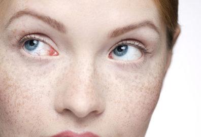 脸上的斑为什么难去掉?